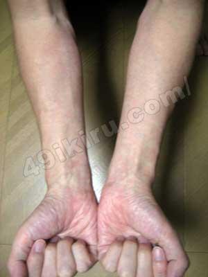 ラミクタールの発疹改善 腕