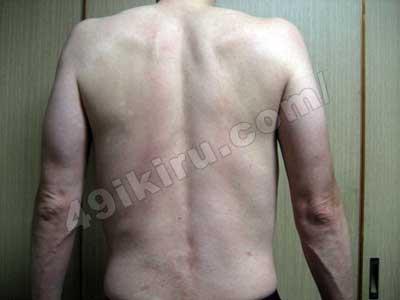 ラミクタールの発疹改善 背中