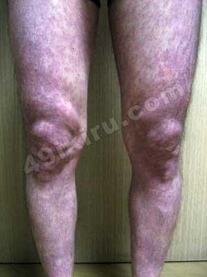 ラミクタールの発疹改善 脚正面