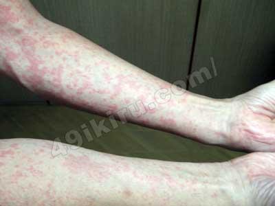 ラミクタールの副作用 発疹画像01 腕